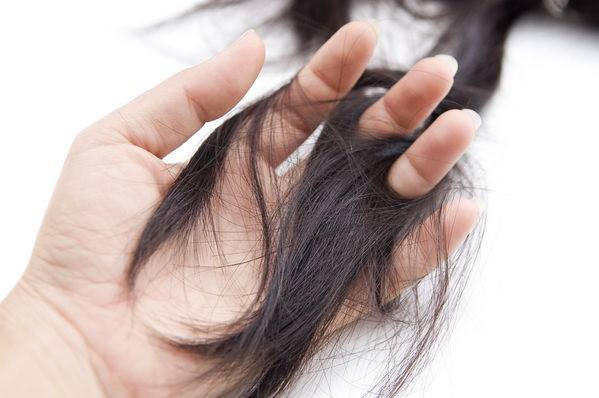 5 Facts you may not know about hair loss